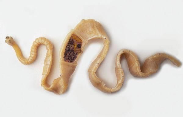 паразиты организме человека смотреть онлайн