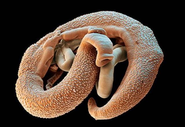 Паразиты в человеческом организме: как их выявить?