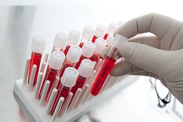 Стронгилоидоз: пути инфицирования, методы диагностики и лечения