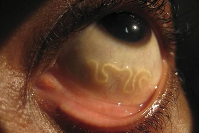 В каких органах человека обитают черви?
