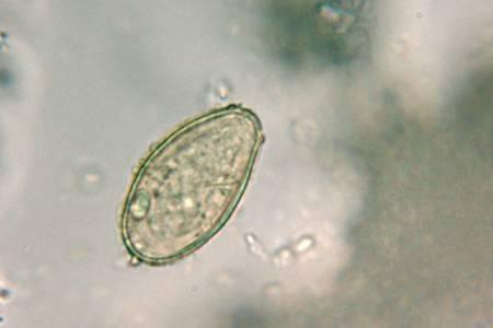 Паразиты в организме человека: как они откладывают яйца