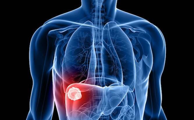 Альвеококкоз печени – смертельная опасность для человека