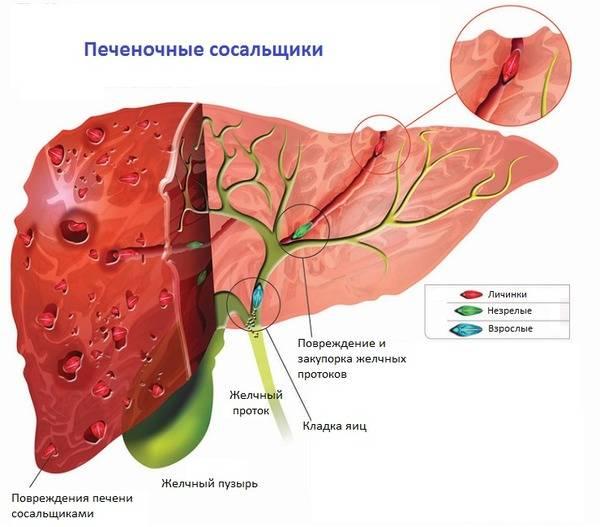 Фасциолез человека: диагностика, лечение и профилактика